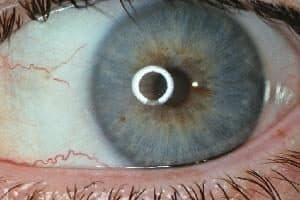 Augendiagnose Berlin Spandau