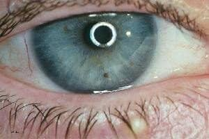 Augendiagnose Berlin Spandau Irisdiagnose